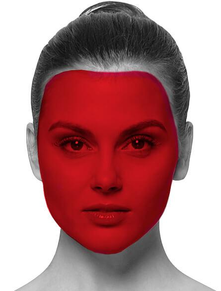 Лазерная эпиляция лица полностью
